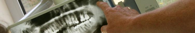 https://downloadimedode.s3.amazonaws.com/arzt_premium/129069-dr-ralph-bitter/Neue%20Bilder%2022072015/Implantologie%20lang.png