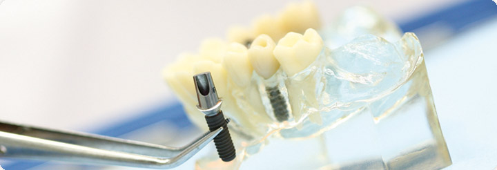 https://downloadimedode.s3.amazonaws.com/arzt_premium/226655-dr-med-dent-peter-graf/keyvisual-implantat.jpg